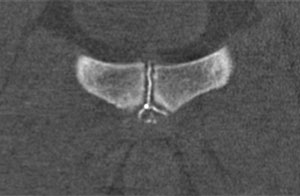 Symphysography secondary cleft sign